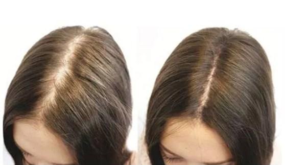 giá thuốc mọc tóc kaminomoto