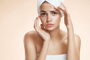 Serum Charme Anti Acne công dụng